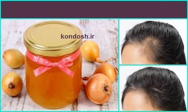 ماسک آب پیاز و عسل برای رشد مو