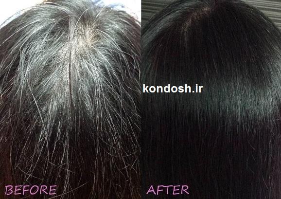 راه حل کاربردی برای جلوگیری از سفیدی مو