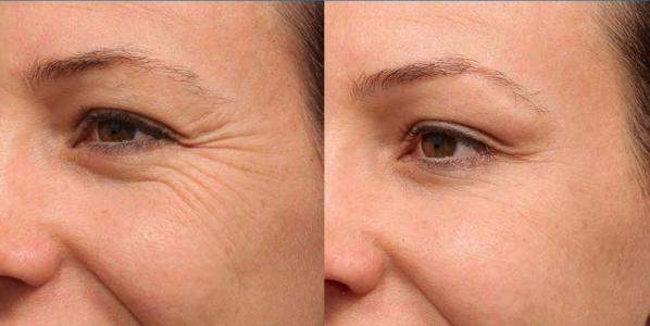 درمان چروک زیر چشم