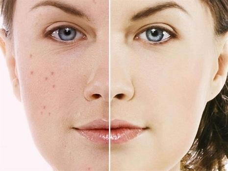 راه حل و شیوه درمان سریع جوش پوست صورت و آکنه
