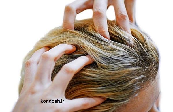 علت خارش پوست سر و روش های درمان آن
