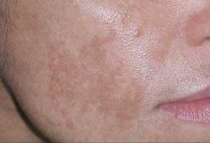 درمان لک های تیره صورت