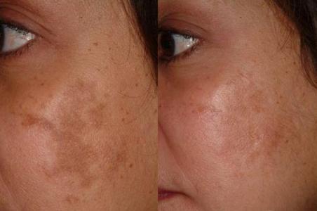 علل بروز لک و درمان لک های پوستی